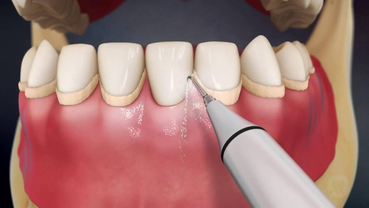 Причины возникновения и методы удаления зубного камня и налета