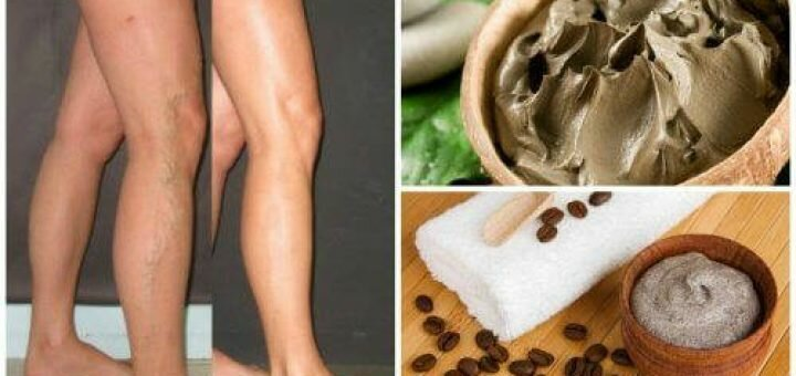 Противопоказания при варикозе на ногах