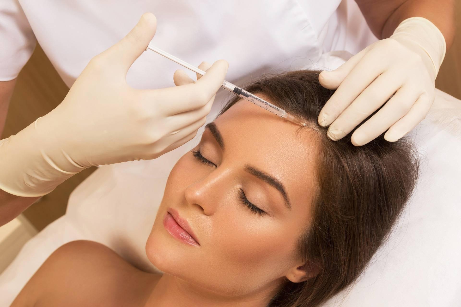 Лучшие средства для мезотерапии волос: какой препарат выбрать?