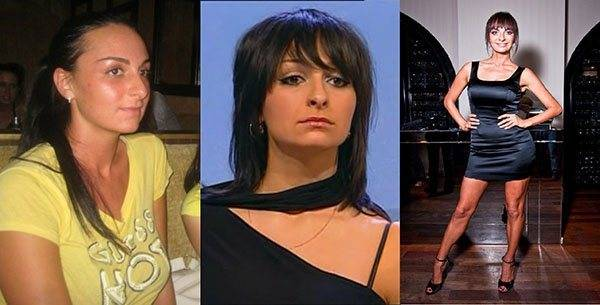 Екатерина варнава: фото до и после пластических операций