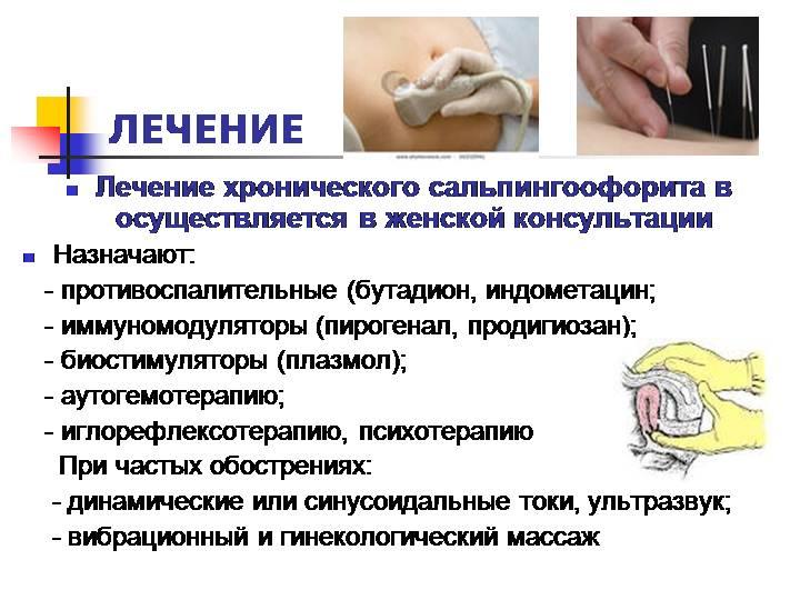 Эффективные методы лечения воспаления придатков у женщин