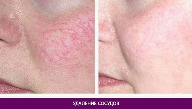 Удаление лазером, отзыв. сосуды на лице: фото до и после