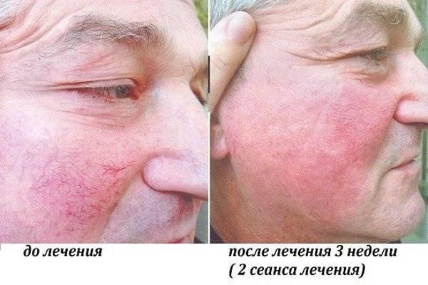 Купероз на лице — эффективно ли лечение лазером?