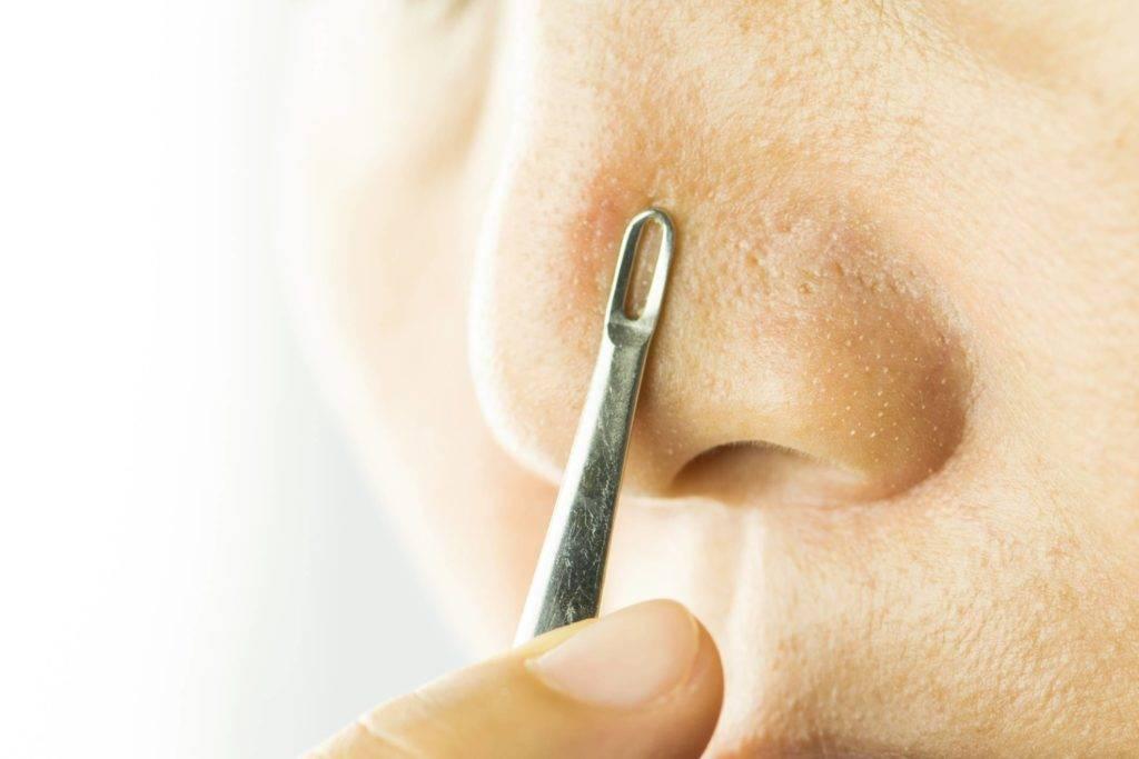 Очищающие полоски для носа — для чего нужны и какие бывают?