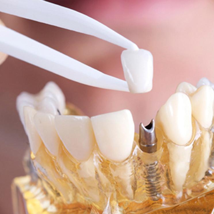 Слепок зубов с помощью компьютера