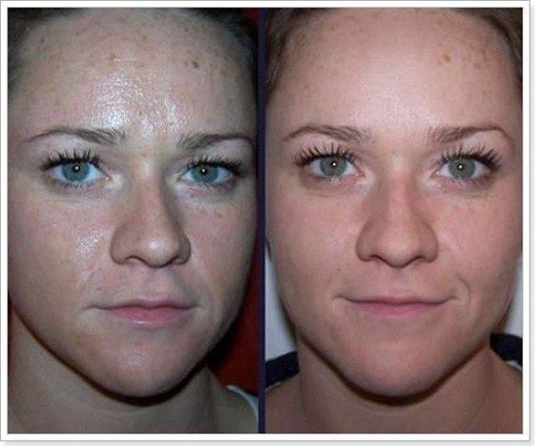 Ультразвуковая чистка лица: плюсы и минусы процедуры, возможные последствия