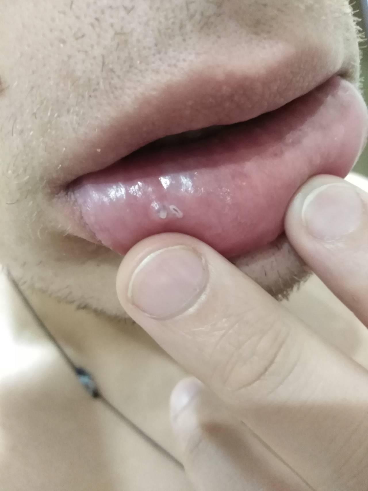Белые прыщики на внутренней стороне губы во рту: причины и лечение у детей и взрослых