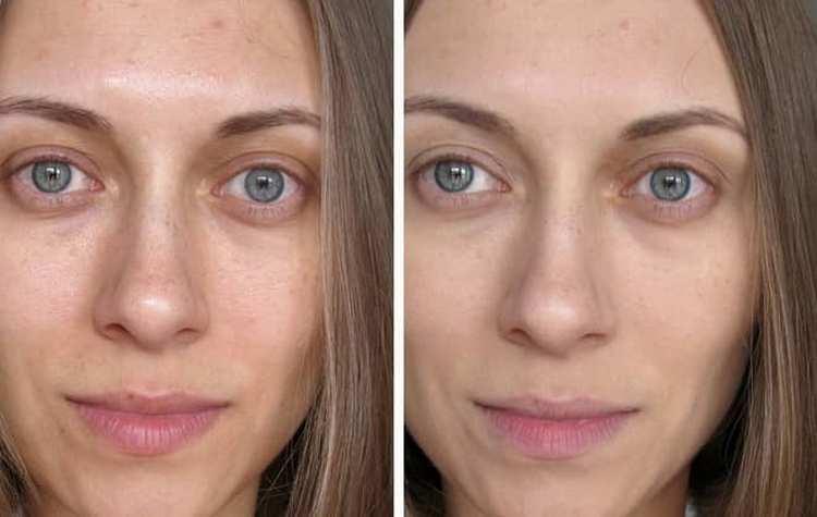 Маска для сияния кожи лица в домашних условиях