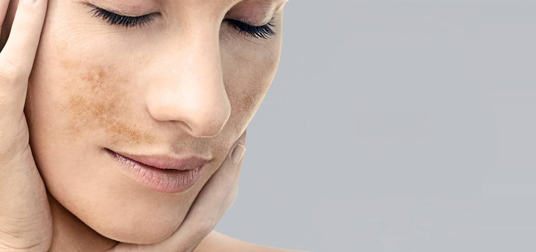 Как избавиться от пигментных пятен на лице: виды, причины образования, после родов, возрастных пятен, народные средства