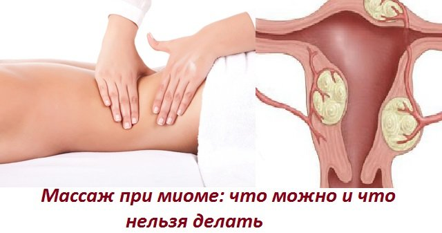 Как остановить кровотечение при миоме матки: препараты, народные методы лечения