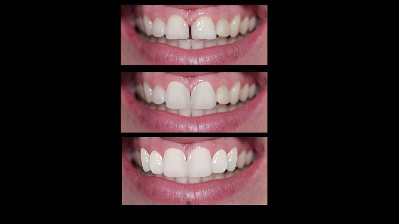 Диастема - щель между передними зубами