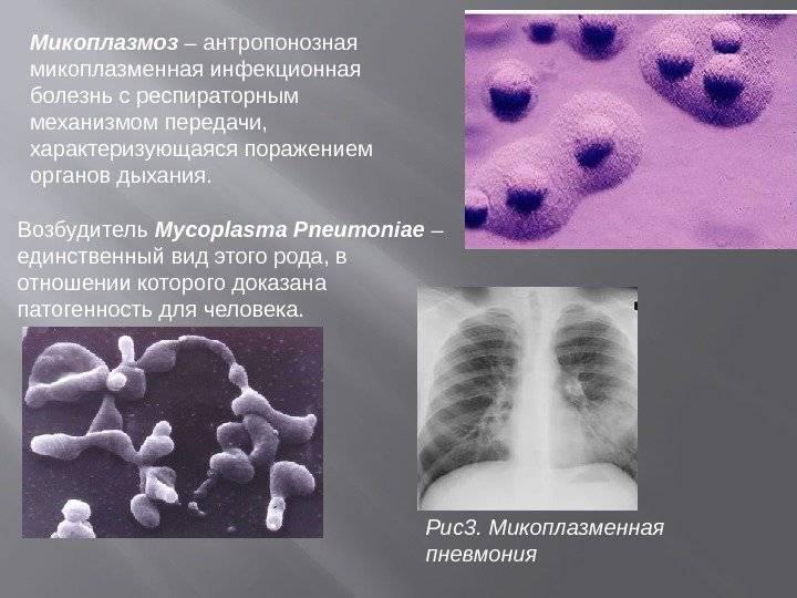 Микоплазма и микоплазмоз, симптомы, лечение у мужчин и женщин