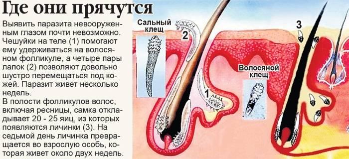 Как производить лечение демодекоза век, ресниц и кожи вокруг глаз