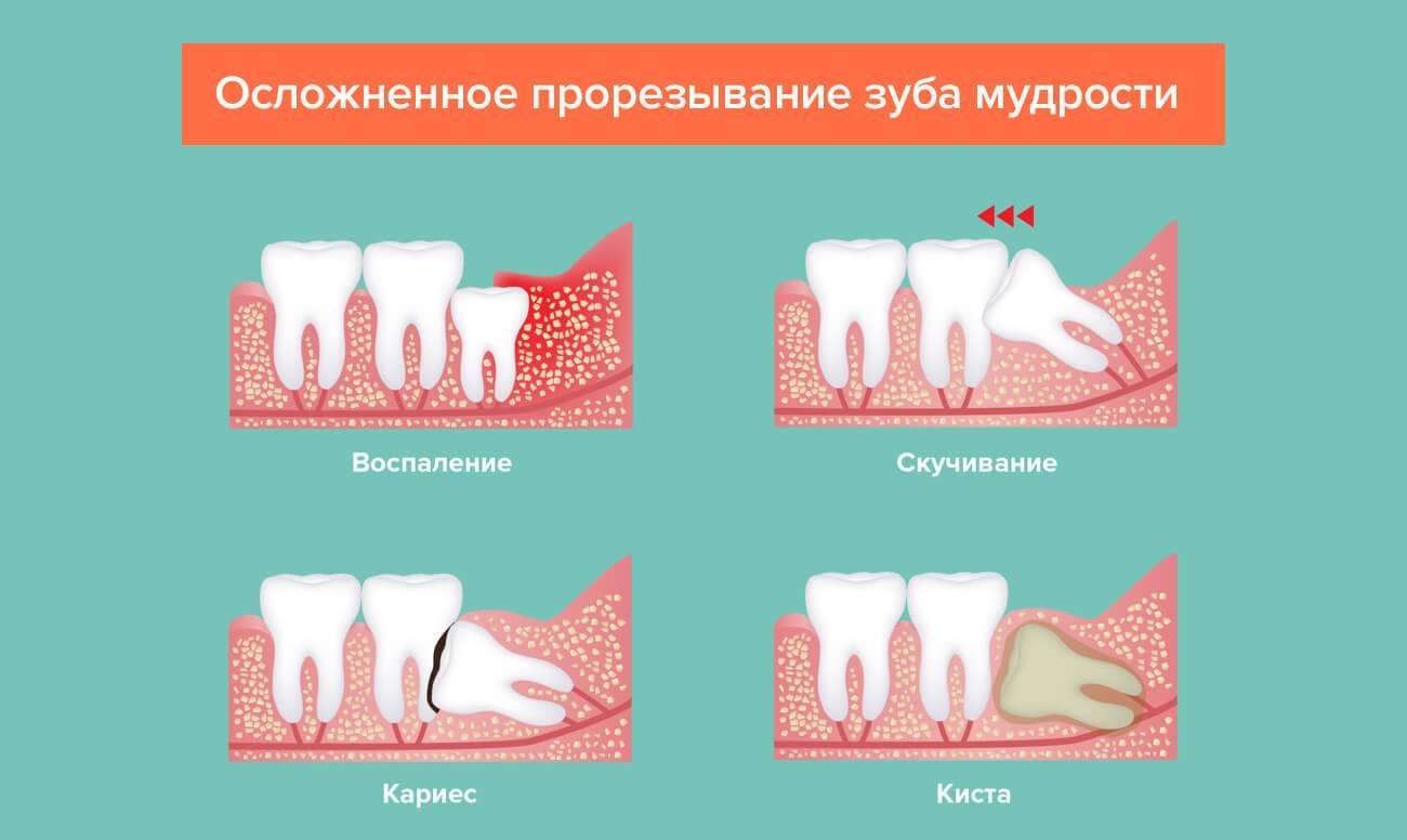Через сколько дней перестает болеть десна после удаления зуба