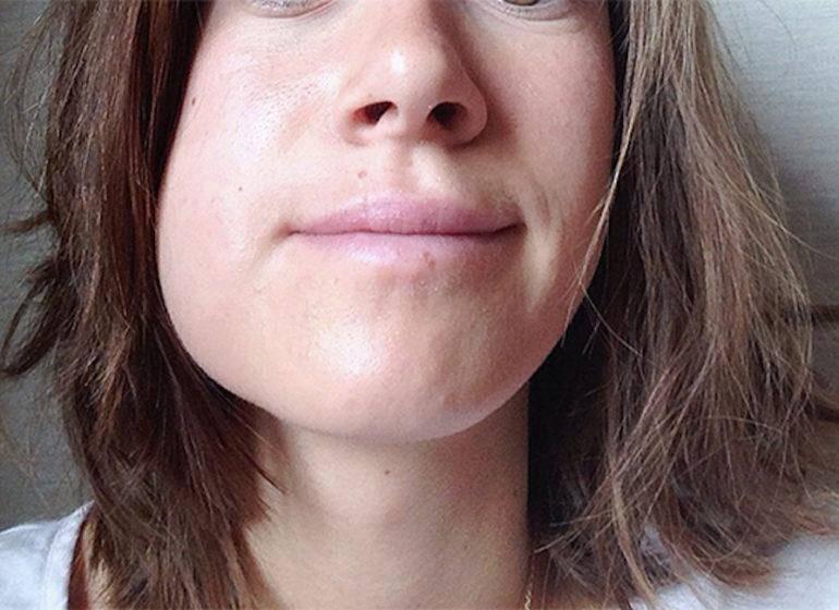Сильно опухла щека после удаления зуба мудрости – как лечить дома