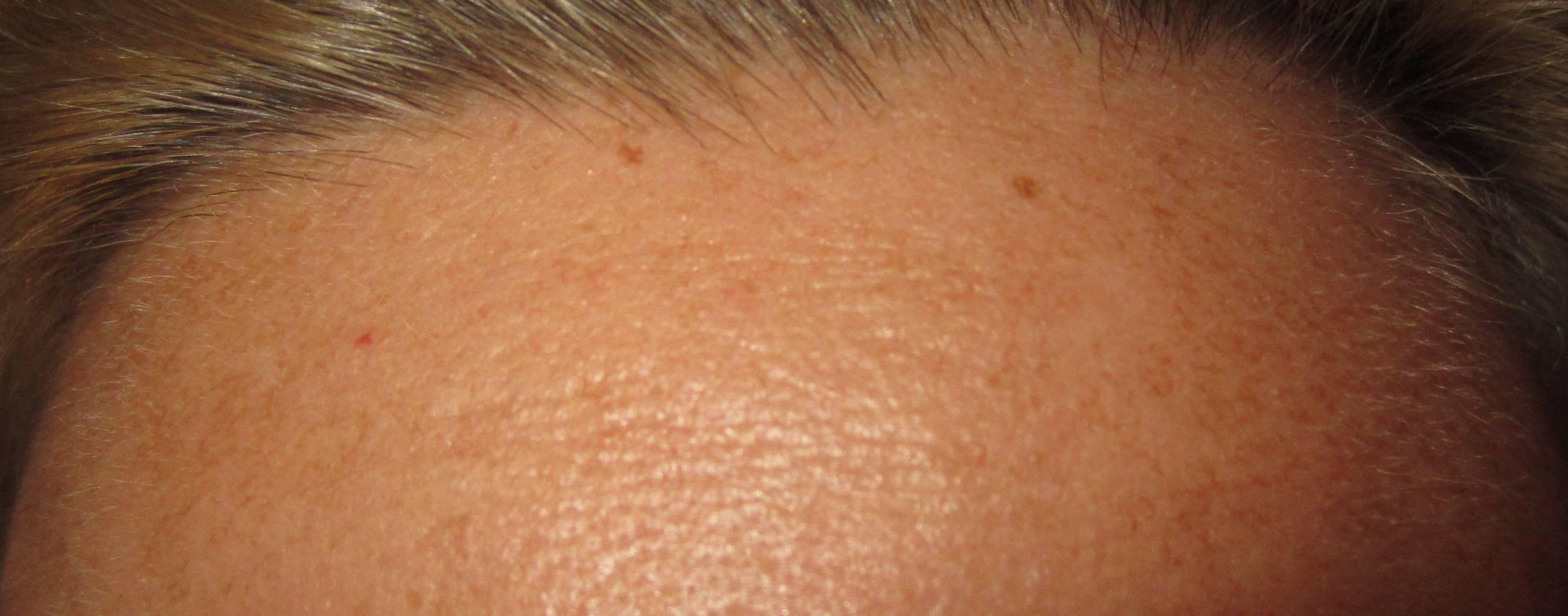 Красное родимое пятно: причины появления, внешний вид с фото, способы удаления, лечение и рекомендации врачей