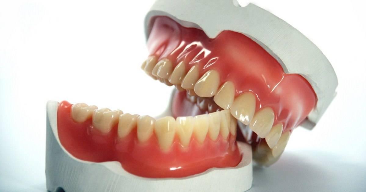 Новости и статьи по метке «зубной протез»