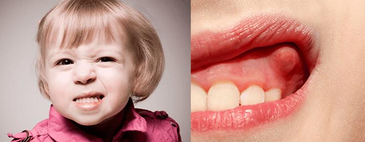 Высокая температура при гингивите у детей. что делать?