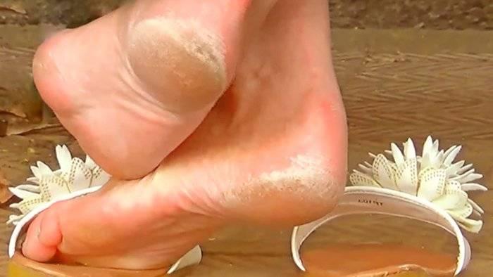 Грубая кожа на стопах и пятках