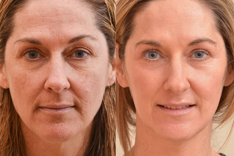 Уход за лицом после 40 лет: косметические процедуры для омоложения