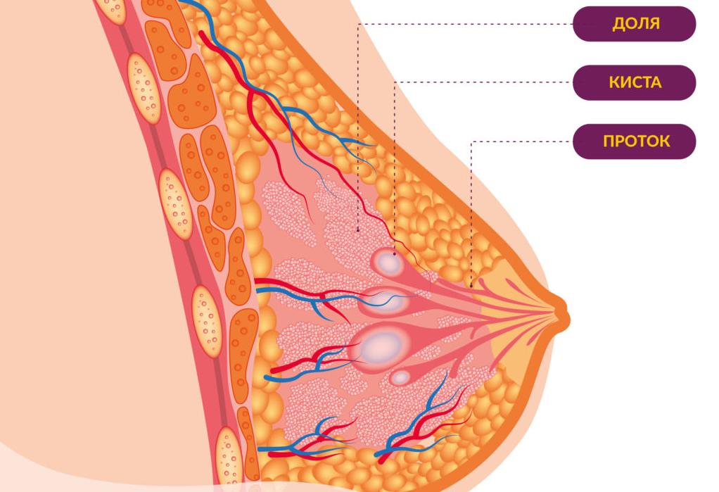 Уплотнения в груди: виды и причины. лечение уплотнений
