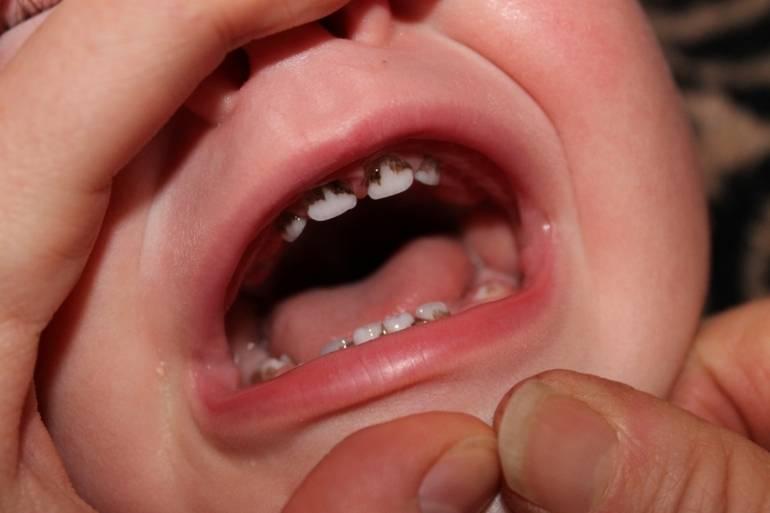Откуда берется желтый налет на зубах у ребенка, чем грозит, как от него избавиться и больше не допускать?
