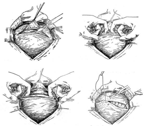 Рубец на матке: кесарево сечение или самопроизвольные роды?