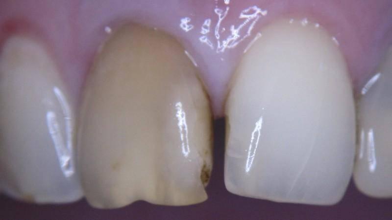 Причины почернения зуба под пломбой