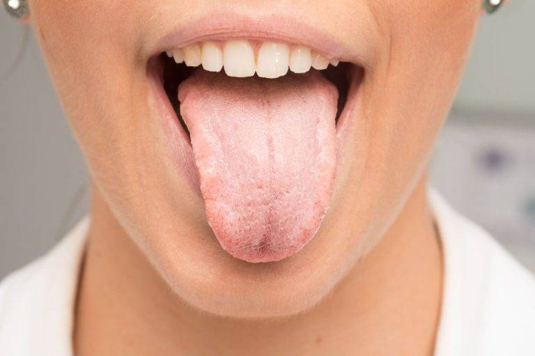 Домашний тест на наличие грибка кандида в организме и способы лечения дисбаланса