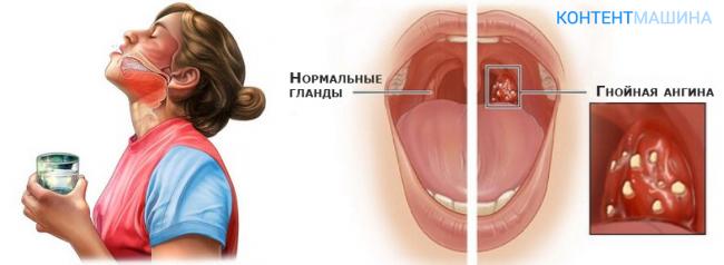 Что делать, если обнаружили гнойники в горле без температуры