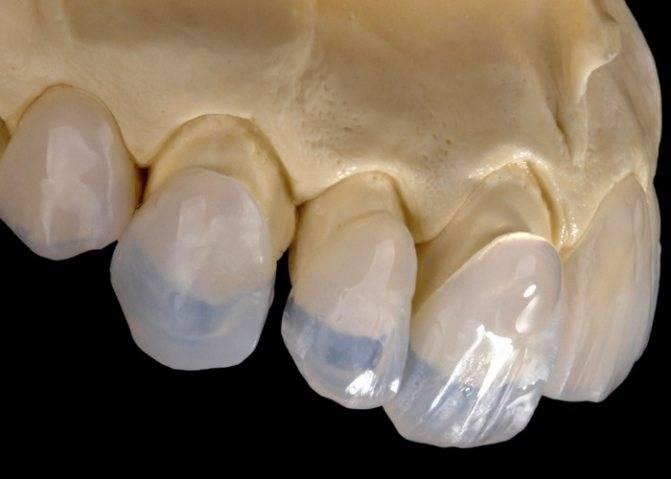 Реставрация зубов: методы и этапы