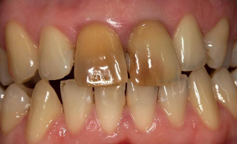 Можно ли отбелить мертвый потемневший зуб, современные методы