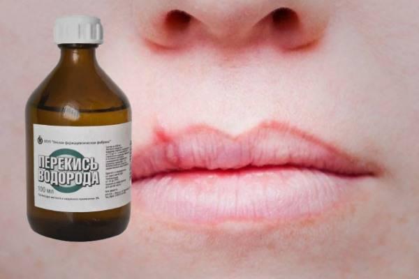 Зеленка при стоматите, перекись водородаа и йод – чем еще можно прижечь язвы во рту