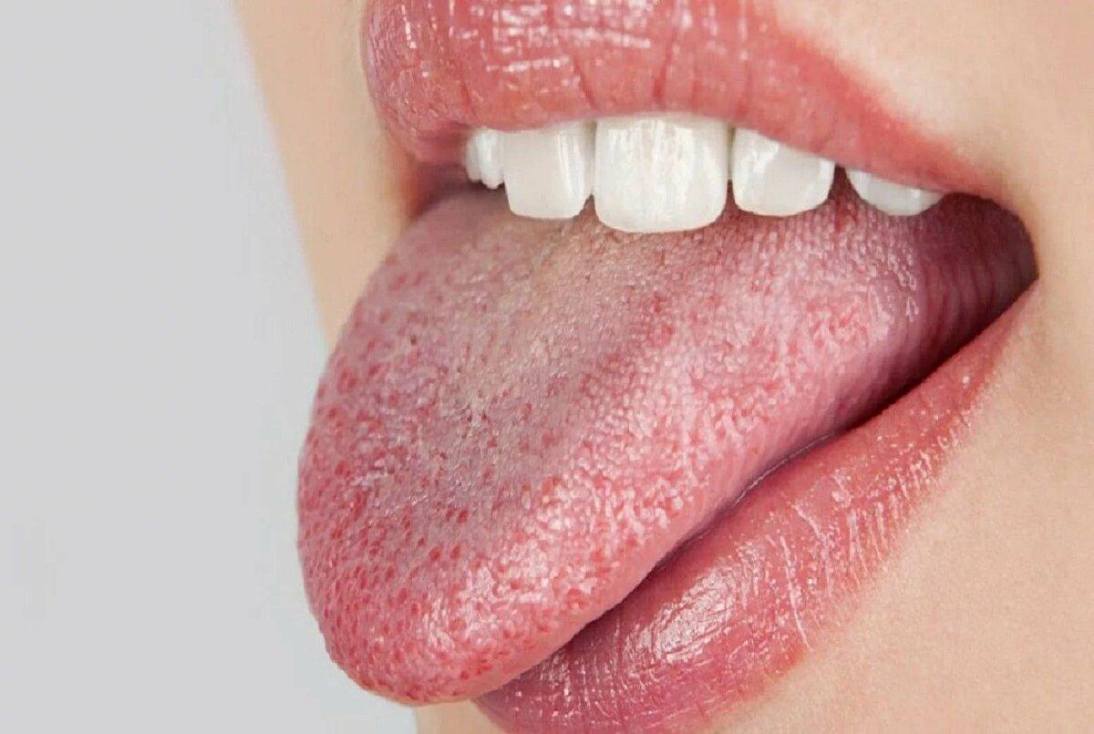 Синдром жжения полости рта. что нужно знать?
