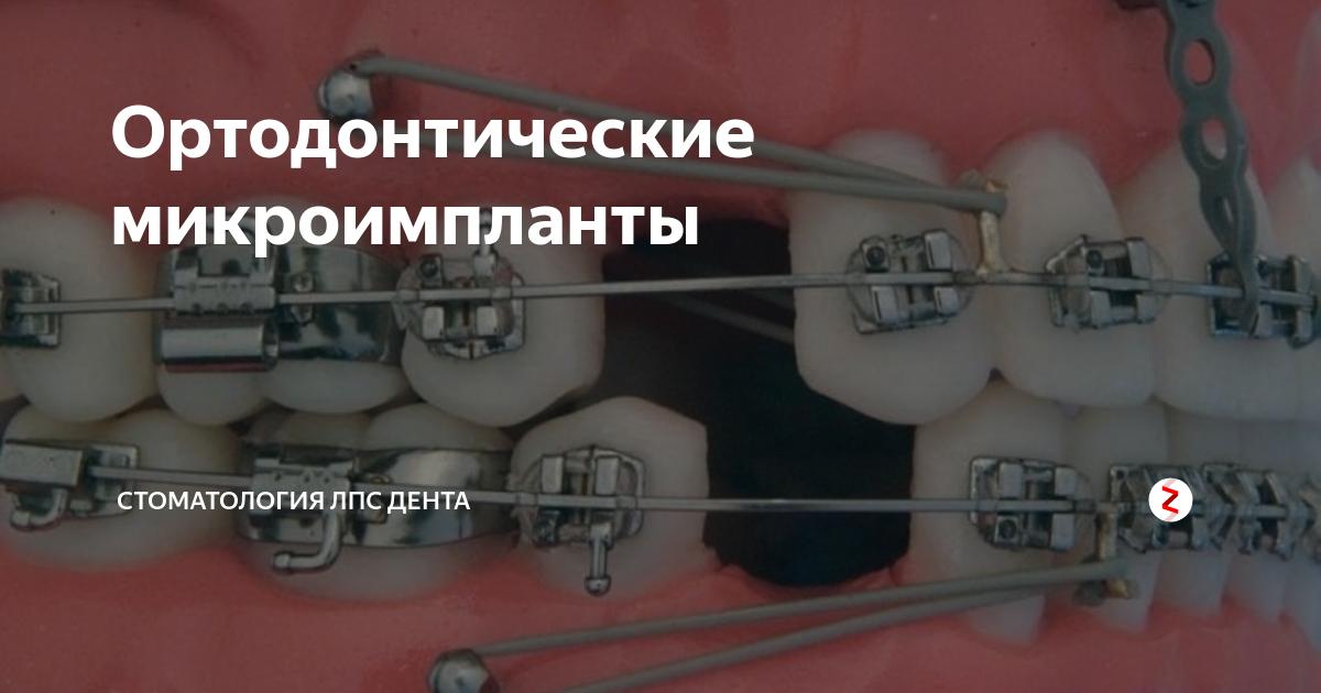 Что такое мини-импланты: «молодое» приспособление в стоматологии