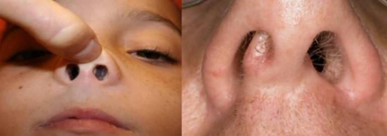 Полипы в носу. лечение без операции народными средствами в домашних условиях