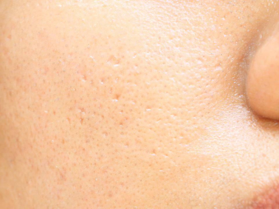 Топ-15 методов как сузить поры на лице максимально быстро и эффективно