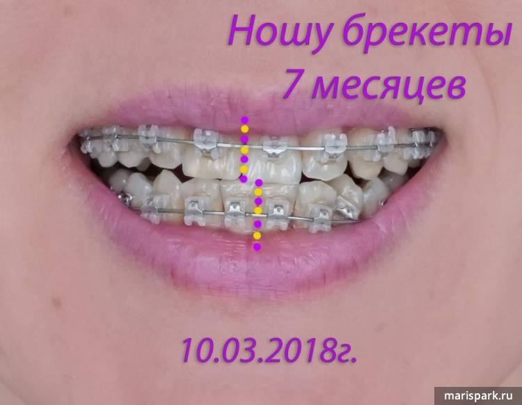 Вред и польза брекетов — чем полезны системы для зубов?