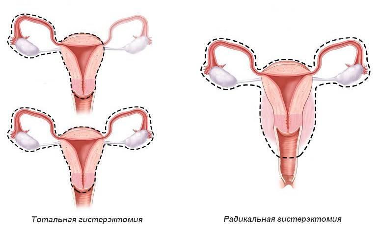 Последствия удаления матки при раке, особенности периода реабилитации