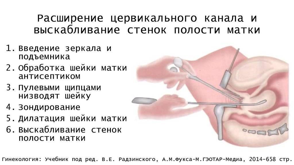 После бужирования цервикального канала сколько кровит. стеноз шейки матки – чем вызвано и чем опасно сужение цервикального канала