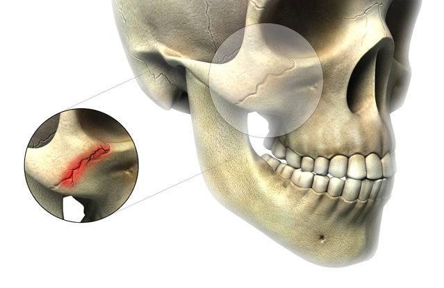 Как предупредить осложнения после перелома сустава челюсти: характеристика травмы и рекомендации лечащего врача
