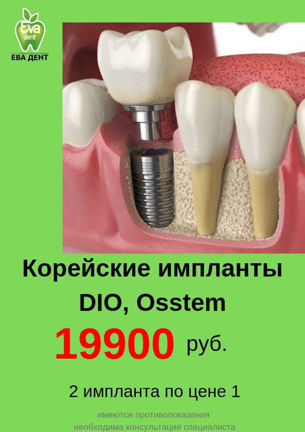 Osstem импланты: отзывы, цена
