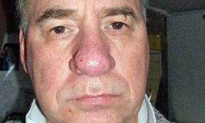 Почему при касании болит кончик носа?