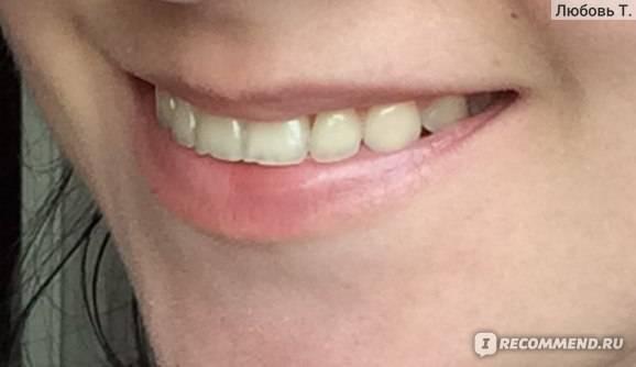 Пломбирование передних зубов