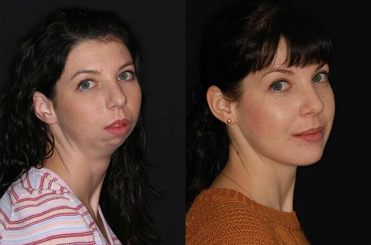 Асимметрия лица: проявления, как исправить консервативно или хирургически