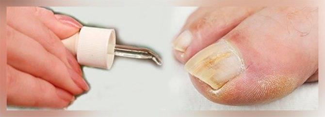 Масло чайного дерева от грибка ногтей — отзывы