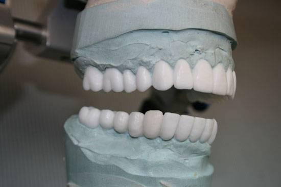 Применение воскового моделирования в стоматологии — современная техника восстановления зубов
