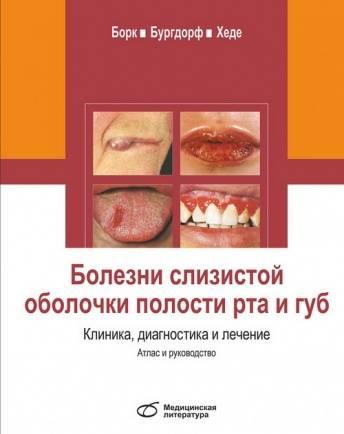 Симптоматическая терапия слизистой оболочки полости рта