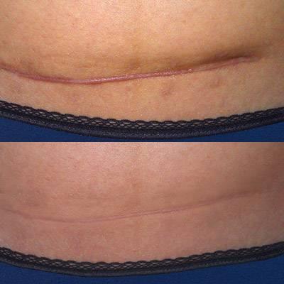 Особенности избавления от шрамов на разных частях тела
