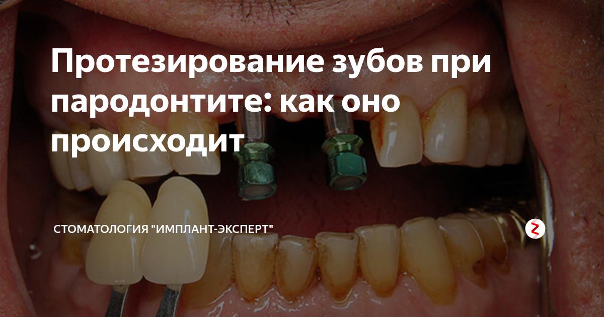 Протезирование при пародонтозе— надежная фиксация зубов